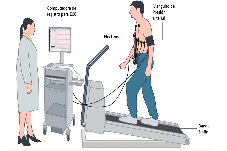 https://cardiologialosmochis.com/wp-content/uploads/2018/01/prueba-esfuerzo-cartoon.jpeg