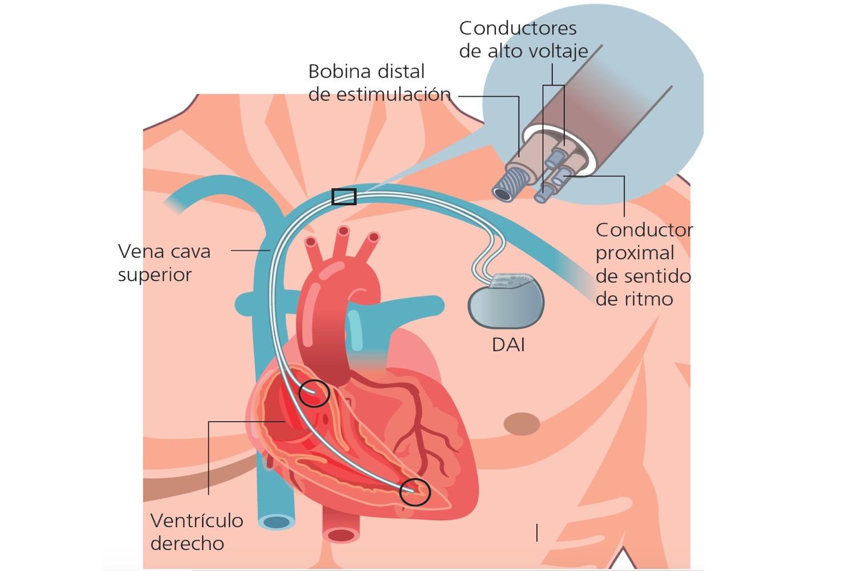https://cardiologialosmochis.com/wp-content/uploads/2019/04/dai.jpg