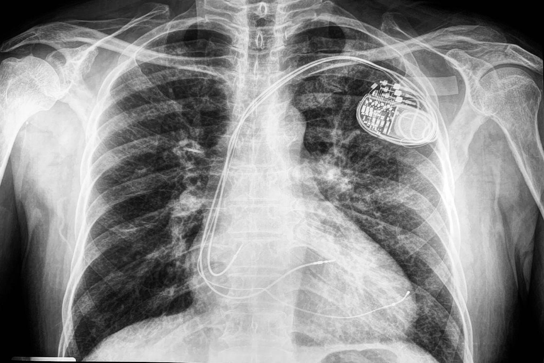 https://cardiologialosmochis.com/wp-content/uploads/2019/04/dr-yitzar-resincronizador-compressor.jpg