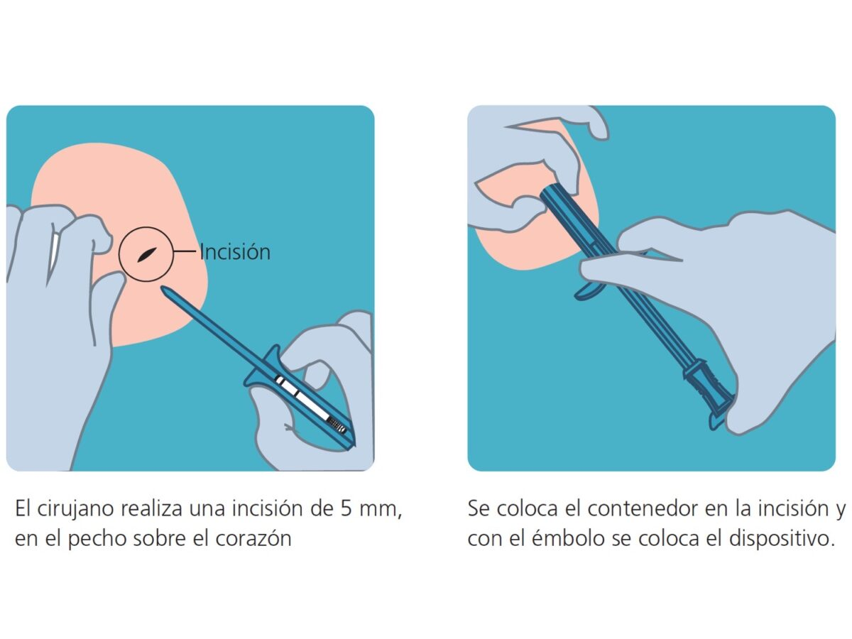 holter implantable2